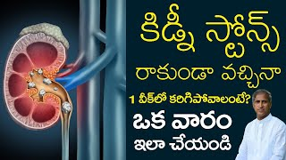 Kidney Stones | Kidney Stone Removal Process | Dr Manthena Satyanarayana Raju