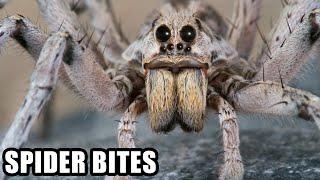 Boisz się pająków to nie oglądaj. Tak wyglądają ślady po ugryzieniach tych najgroźniejszych