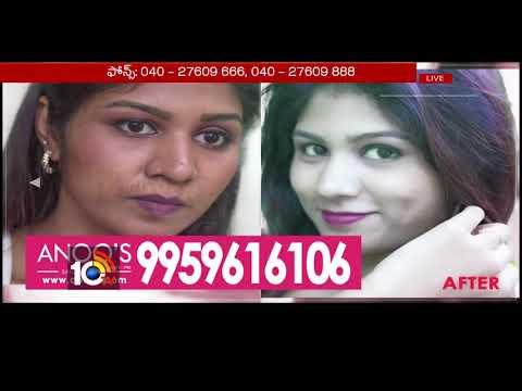 Hair salon - Anoo's Salon & Clinic Presents Health Time  Hair Loss Problems  Anoo's Beauty Courses  10TV