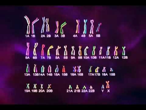 Watch video Down Syndrome Genetic Disorder
