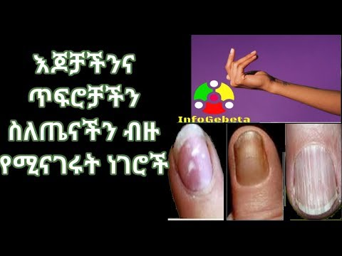 InfoGebeta: HealthTips: Things Your Fingernails And Hands Say About Your Health
