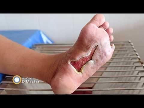 Na koji način je potrebno lečiti ranice na stopalima