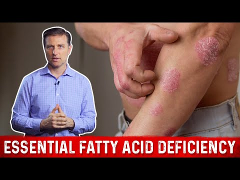 Essential Fatty Acid Deficiency