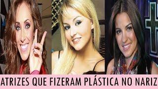 Caliente News apresenta:ATRIZES QUE JÁ FIZERAM PLÁSTICA NO NARIZConheça as ATRIZES DE NOVELAS MEXICANAS QUE JÁ FIZERAM PLÁSTICA NO NARIZ.Saiba quem são as celebridades latinas que já retocaram o nariz.INSCREVA-SE NO CANAL CALIENTE NEWS:Clique: https://www.youtube.com/c/CalienteNewsOficial?sub_confirmation=1ASSISTA TAMBÉM:Atrizes Mexicanas que Posaram Nua: https://www.youtube.com/watch?v=21I7b9jsvxECirurgias Plásticas de Ninel Conde: https://www.youtube.com/watch?v=8aIY4bCJMkA&t=34sMascotes dos Famosos Mexicanos: https://www.youtube.com/watch?v=mp8Drv4jyLYFaça parte do nosso canal! Inscreva-se.Clique: https://www.youtube.com/c/CalienteNewsOficial?sub_confirmation=1Curta, Comente e Compartilhe os vídeos do canal Caliente News com seus amigos!Gracias!