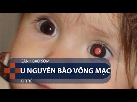 Cảnh báo sớm u nguyên bào võng mạc  ở trẻ | VTC1 - Thời lượng: 2 phút, 39 giây.