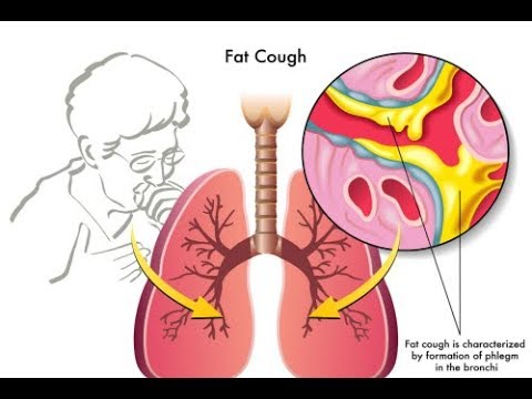 7 Ways to Get Rid of Mucus in Your Lungs - Mucus Home Remedy
