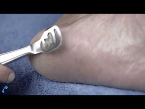 Der Hornhauthobel (richtige Anwendung | Klinge wechseln) - Hornhaut entfernen Test