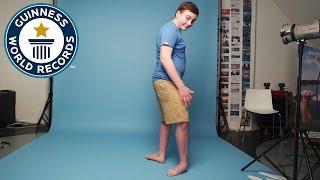 Подросток попал в Книгу рекордов Гиннеса благодаря способности выворачивать ноги в обратную сторону