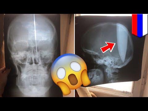俄羅斯男子拿刀在腦袋開洞 只為了想好好呼吸