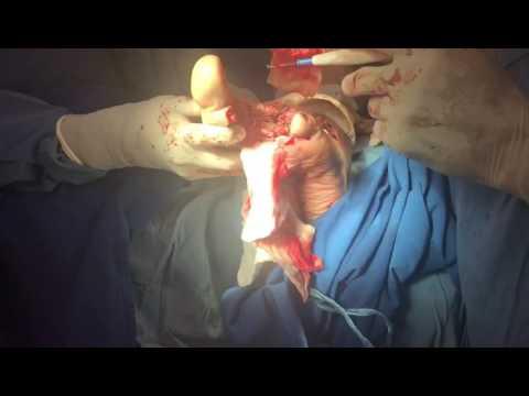 El proceso de rene cifuentes(2)