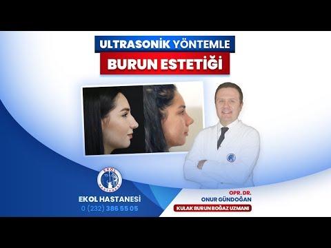 Ultrasonik Yöntemle Burun Estetiği - Opr. Dr. Onur Gündoğdu - İzmir Ekol Hastanesi