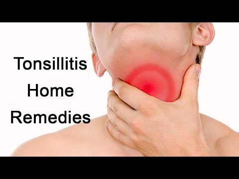 Tonsillitis Treatment - Home Remedies For Tonsillitis