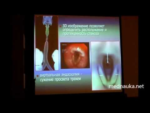 Компьютерная томография при патологии гортани и трахеи