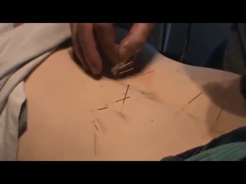 Abdominal acupuncture for neck, shoulder and wrist pain