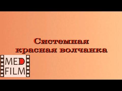 Системная красная волчанка © sуsтемiс luрus еrутhематоsis - DomaVideo.Ru