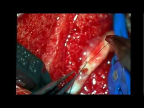 Anastomosis microquirurgica   Microsurgical anastomosis 3