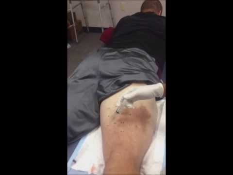 How to Heal Torn Hamstring with Ozone Therapy Injection, Derek Landri Tampa Bay Bucs NFL