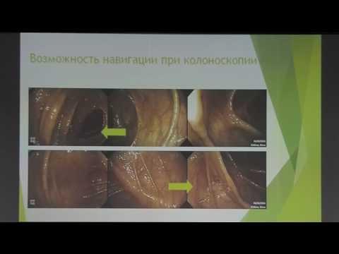 07 Веселов ВВ   Панорамная колоноскопия FUSE Full spectrum Endoscopy