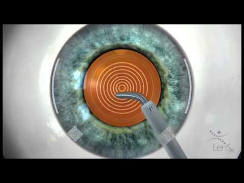 Удаление катаракты лазером(Модель анимация)