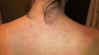 Watch Dayna's Story on Improvement with her Folliculitis or