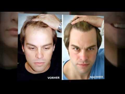 Haarausfall stoppen - natürlich, ohne Medikamente, wir helfen!