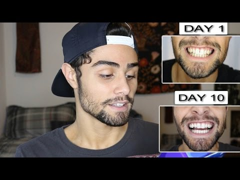 TESTING CREST 3D WHITE STRIPS! FULL 10 DAY REVIEW | Konnor J Gomes