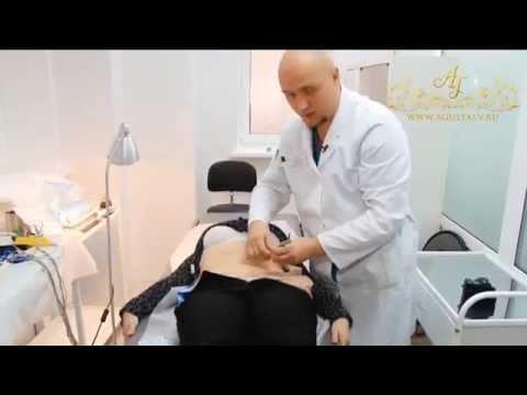 Видео о проведении операции по абдоминопластике,