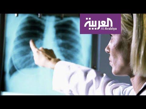 العرب اليوم - شاهد: السيجارة الالكترونية لا تسبب تجمّع الماء في الرئة