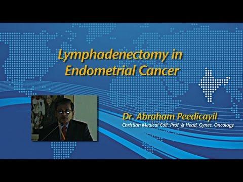 Dr. Abraham Peedicayil: Lymphadenetomy in Endometrial Cancer