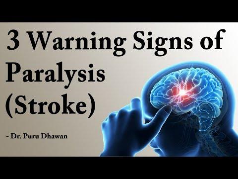 3 Warning Signs of Paralysis (Stroke)