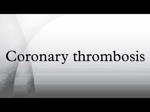 Coronary thrombosis