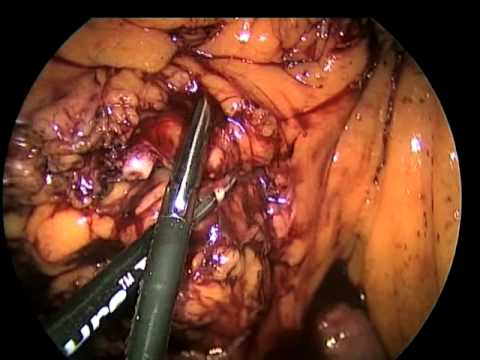 Laparoscopic Extended Right Hemicolectomy with Intracorporeal Anastomosis