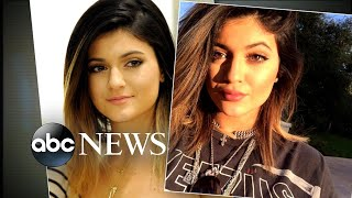 Video Kylie Jenner says she is no longer using temporary lip fillers MP3, 3GP, MP4, WEBM, AVI, FLV Juli 2018