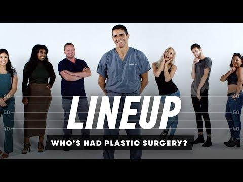 Guess Whos Had Plastic Surgery   Lineup   Cut_A plasztikai sebészet kulisszatitkai. Legeslegjobbak