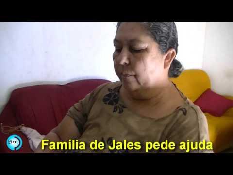 Jales - Família corre o risco de poste desabar sobre a casa tem pedido negado pela Prefeitura de Jales, a renda total de quatro pessoas na casa não passa de 900 reais/mês, pedem ajuda de matérias de construção.
