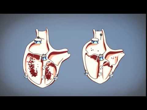 come funziona il cuore, spiegato in modo semplice
