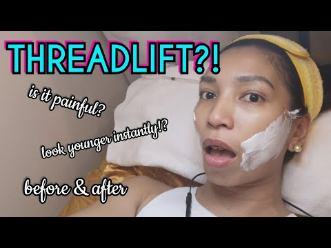 I HAD A NON-SURGICAL FACE LIFT! | PDO Thread Lift BEFORE & AFTER