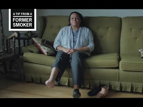 Marie talks about discovering she had Buerger's disease, an illness caused by smoking, and its effects on her life in this video from CDC's Tips From Former Smokers campaign.