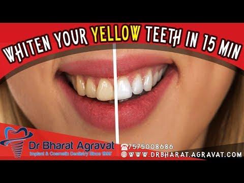 Laser Teeth Whitening in 15 min  Procedure video Ahmedabad India