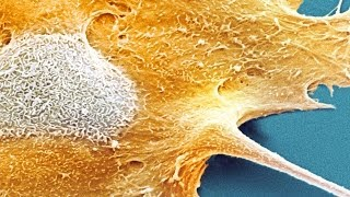 Video Why Don't We All Have Cancer? MP3, 3GP, MP4, WEBM, AVI, FLV Juni 2018