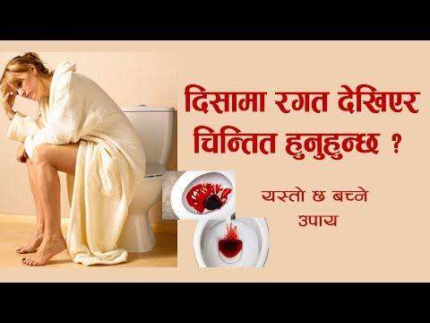 (दिसामा रगत देखियो : ठुलो आन्द्राको क्यान्सर पनि हुनसक्छ - Dr. Bhupendra Kumar Basnet | Hamro Doctor - Duration: 5 minutes, 48 seconds.)