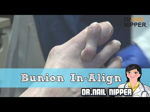 Videos de uñas - Bunion and InAlign