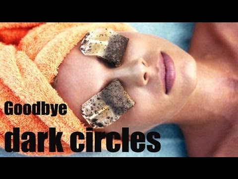 Beauty Tips – Easy Steps to Cure Dark Circles – Part 1