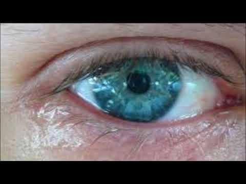 что делать если глаза сильно слезятся