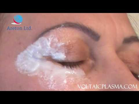 Plasma Lower and Upper Eyelid Tightening training