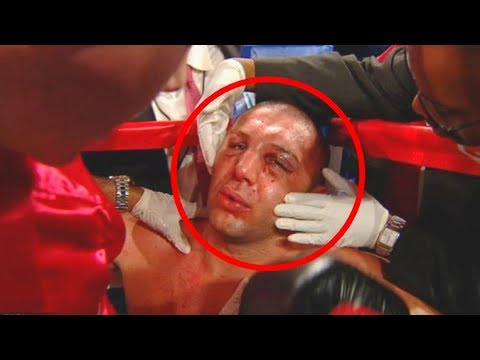 Top 5 Boxers who have died in the Ring