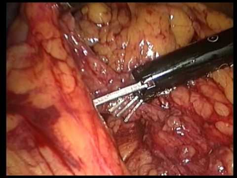 Multipe Polypes And Subtotal Excision Of The Colon