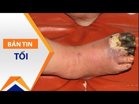Biện pháp giảm biến chưng cụt chân do tiểu đường | VTC - Thời lượng: 59 giây.