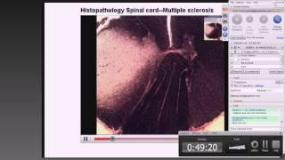 Medical School Pathology, 2013 Season, Session #38: Ortho-2