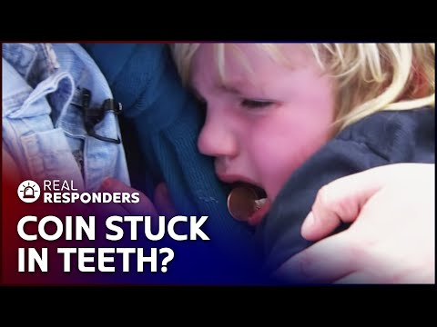 Doctors Remove Coin From Young Boys Teeth | Temple Street Children's Hospital | Real Responders